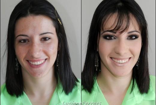 Como corrigir a pele com acne, fácil e rápido, com Lu Ferraes